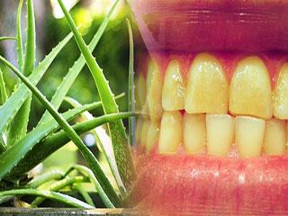 ऐलोवेरा का करें ऐसा प्रयोग, 2 दिन में दांतों का पीलापन होगा दूर