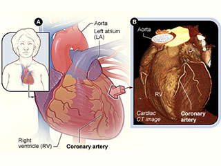 What to expect before Cardiac CT?