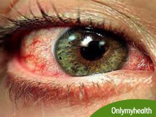 आंखों की खतरनाक बीमारी हैं मैक्यूलर डिजनेरेशन, जानें इसके लक्षण