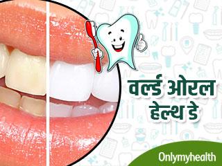 वर्ल्ड ओरल हेल्थ डे : दांतों का रंग खोलता है सेहत का राज, जानें क्या है आपका हाल
