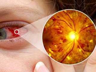 शुरुआत से बरतें ये सावधानियां, डायबिटिक रेटिनोपैथी छीन सकती है आंखों की रोशनी