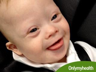 बच्चों के बौद्धिक विकास को प्रभावित करता है डाउन सिंड्रोम : शोध