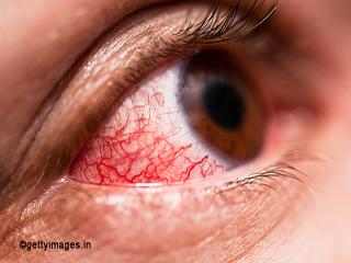 गर्मियों में आंखों के संक्रमण का अचूक इलाज है ये 11 सस्ते उपाय