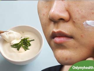 तनाव और हार्मोनल बदलावों से आते हैं चेहरे पर मुंहासे, इस तरह आसानी से पाएं छुटकारा