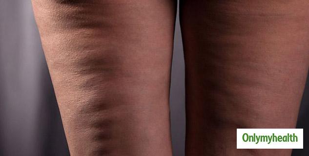 cellulite_body