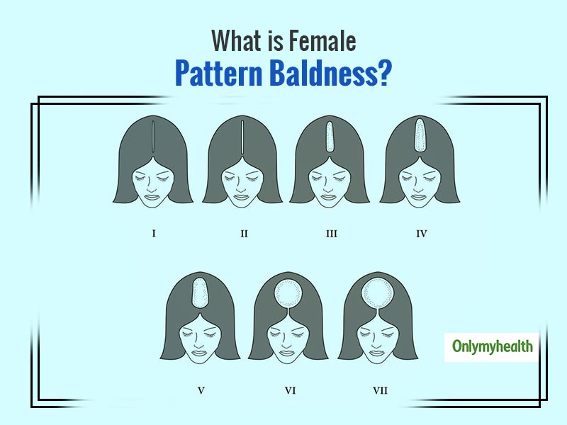 Female Pattern Hair Loss: Symptoms, Stages And Treatment