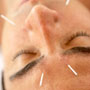Acne treatment with Acupuncture