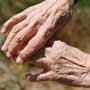 Ayurvedic Treatment For Osteoarthritis