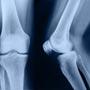 Causes of Migratory Polyarthritis