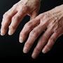 Low-impact Exercises for People with Rheumatoid Arthritis