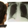 November is observed as Lung Cancer Awareness Month