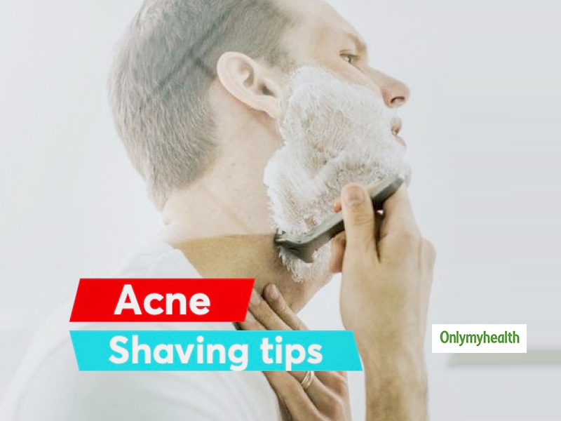 Do You Have Acne? Here Are Some Shaving Tips For Men To Shave With Acne