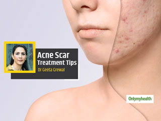 Acne Scars: Hiding Your Face Due To Acne Scars? Here's How To Get Rid Of Them