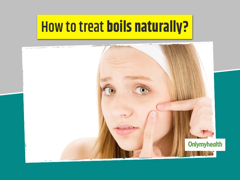 Here Are 9 Natural Ways To Get Rid Of Boils And Tips To Prevent Them