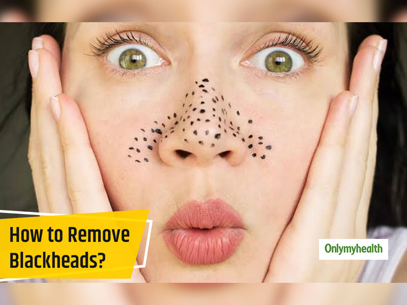 Blackheads On The Face? Here Are The Causes, Home Remedies And Tips To Prevent Them