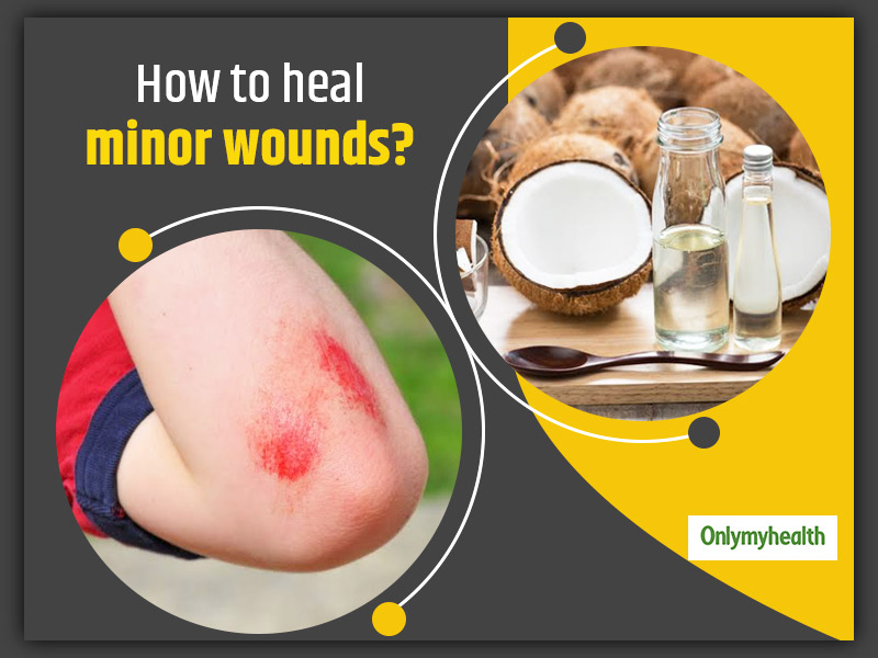 Here Are 10 Natural Remedies To Heal Minor Wounds
