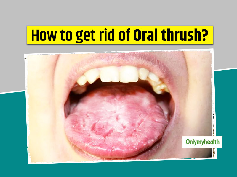 Want To Get Rid Of Oral Thrush? Here Are 10 Home Remedies To Help Naturally