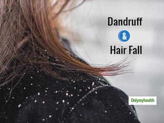 Follow These Tips to Manage Hair Fall Dandruff