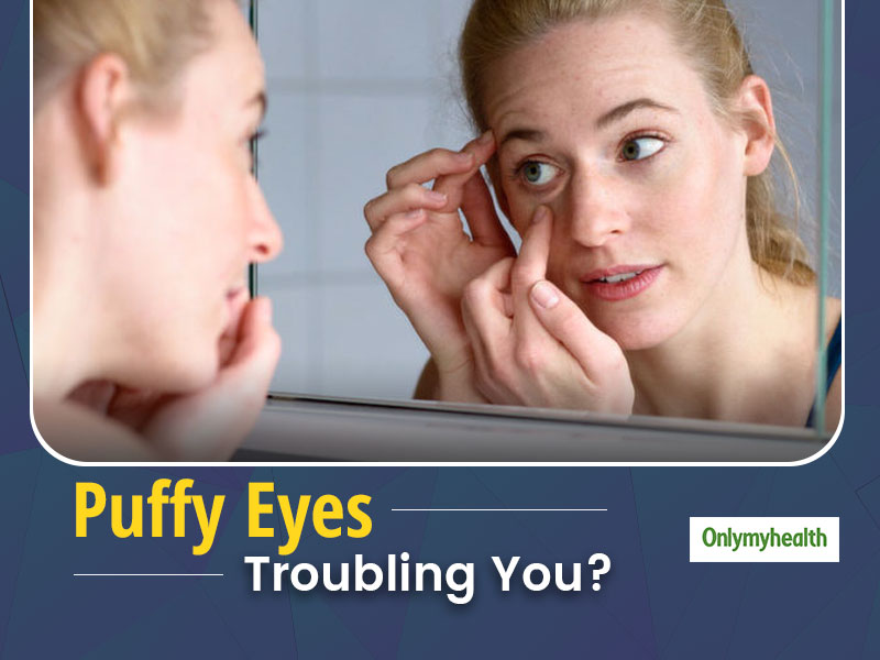5 Common Health Reasons For You To Have Puffy Eyes