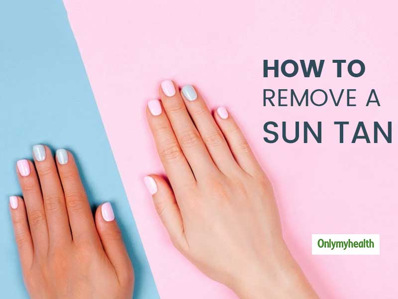 Get Rid Of Sun Tan From Hands With These Simple Remedies