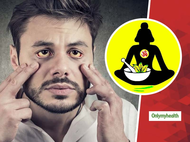 Trying To Recover From Jaundice? Try These Ayurvedic Remedies For A Natural Course Of Treatment