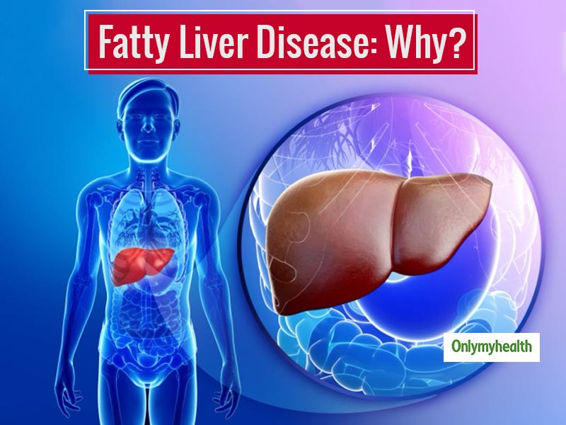 Fatty Liver Disease: What Is Fatty Liver Disease, Symptoms, Types And Diagnosis