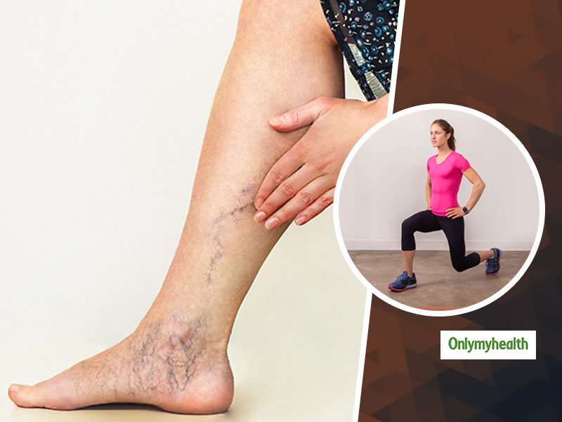 Exercises For Varicose Veins: Know Which 3 Exercises Can Fix Those Bulging Veins