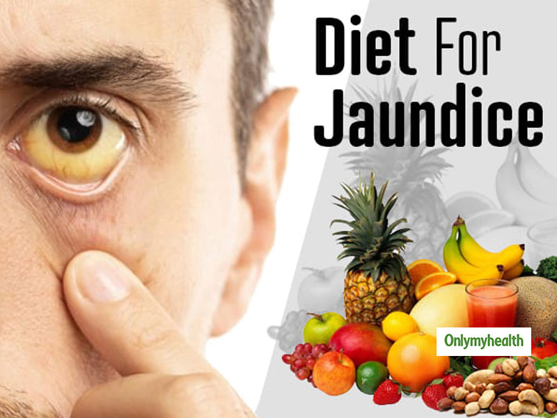 Indian Diet For Jaundice Patients: What To Eat and What To Avoid, Explains Nutritionist Nmami Agarwal