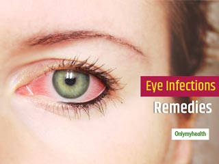 Dealing With Eye Infections? These 10 Home Remedies For Eye Infections Can Come Handy