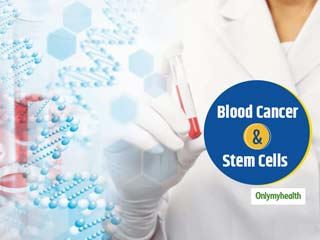 Blood Cancer & Stem Cell Transplant: How Stem Cells Can Give Blood Cancer Patients A Second Chance