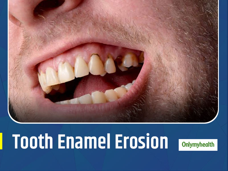 Know The Causes, Symptoms And Treatment For Tooth Enamel Erosion