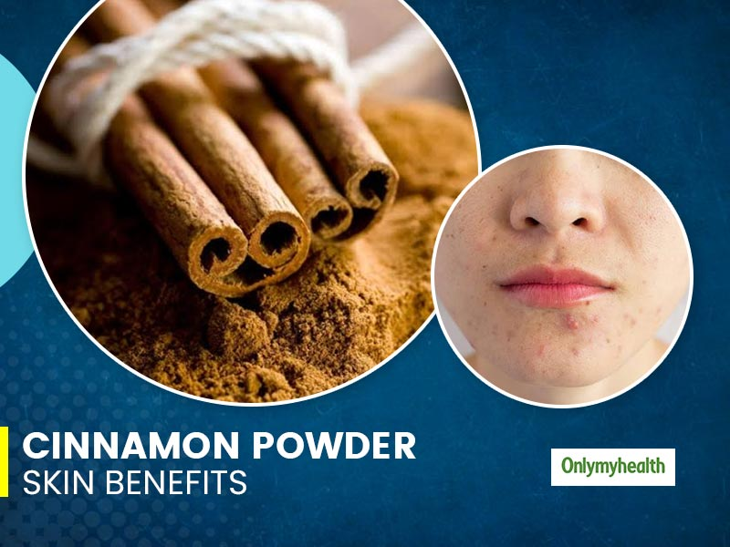 Cinnamon Powder Can Cure Pimples? Here Are Other Skin Benefits Of Applying It