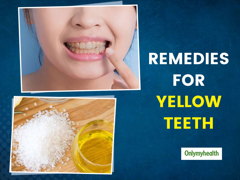Try These 6 Effective Home Remedies To Whiten Yellow Teeth