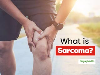 What Is Sarcoma? Here Are The Types, Symptoms, Causes And Treatment