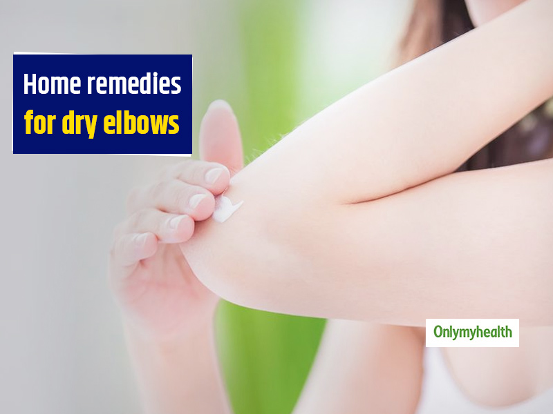 Frustrated Of Dry Elbows? Here Are 8 Home Remedies To Get Rid Of Them
