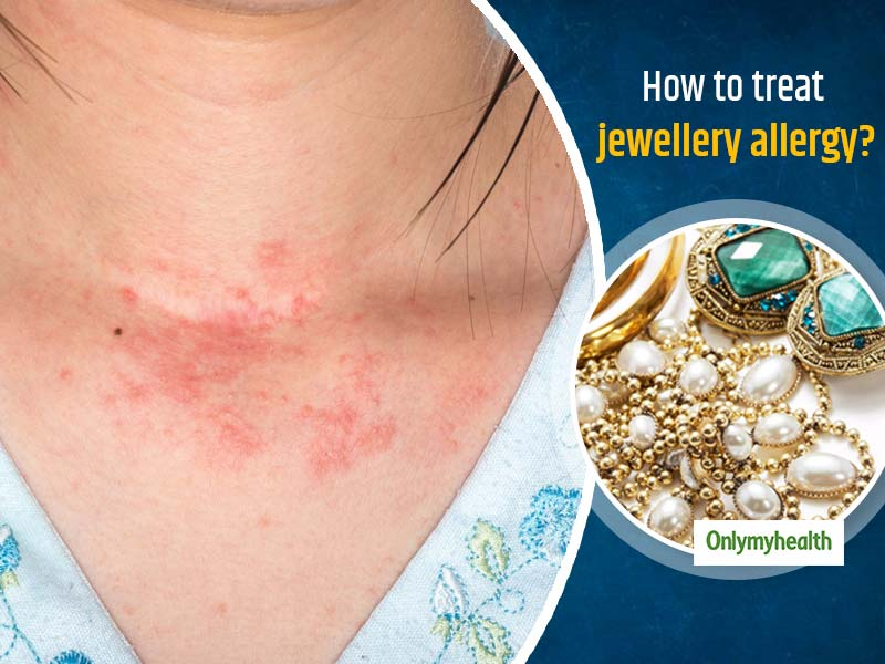 Jewellery Allergy: Here Are Symptoms And Treatment For An Allergy-Free Skin