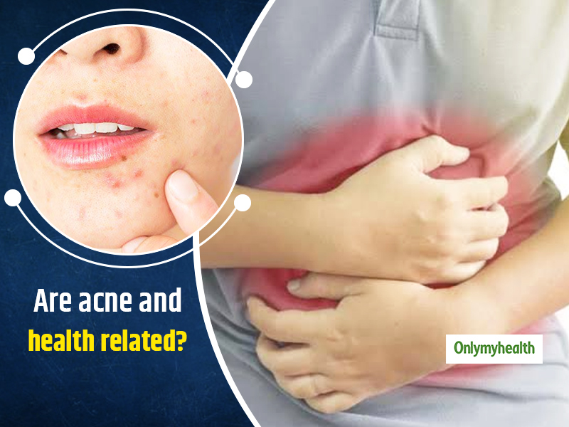 Want To Know The Reason For Acne On Cheeks? Here's What Your Acne Says About Your Health