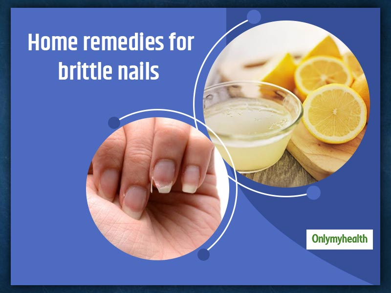 Tired Of Your Nails Chipping And Breaking? Here Are Remedies And Tips To Strengthen Brittle Nails
