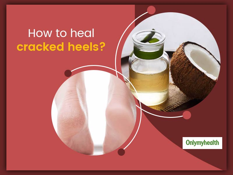 Causes Of Cracked Heels And Ways To Heal The Dryness