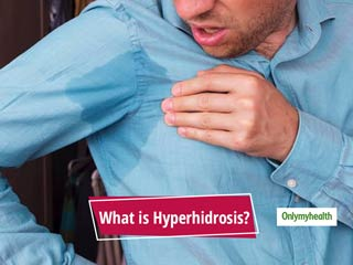 Excessive Sweating In Social Situations? Know The Causes, Symptoms And Treatment For Hyperhidrosis