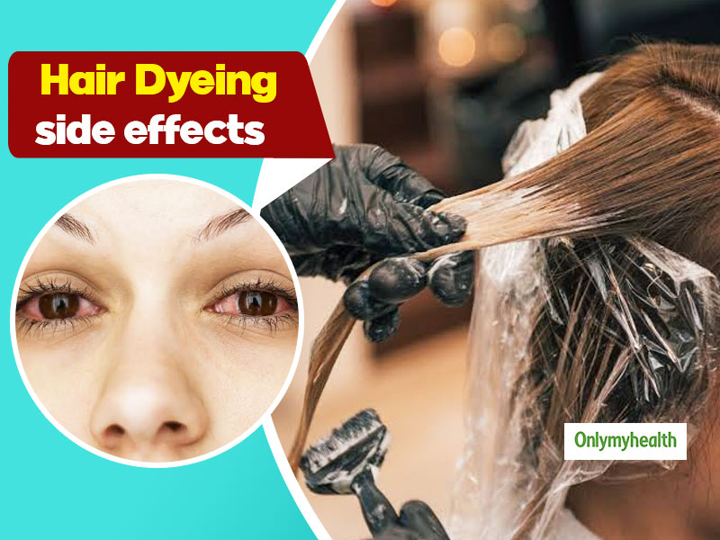 Check Out These Side Effects Of Applying Hair Dyes