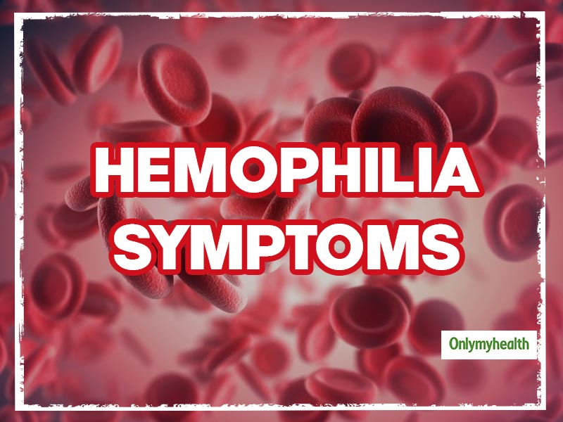 Hemophilia Symptoms: These 3 Conditions Could Be Possible Indicators Of Hemophilia