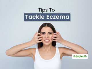 <strong>Doctor</strong>-Verified Tips To Manage Eczema Breakouts That Happen Due To Weather Change