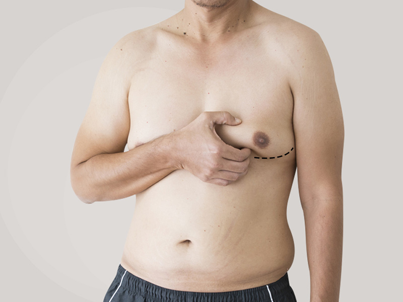 What Are 'Man Boobs'? Know The Cause, Treatment and Tips To Avoid This Condition