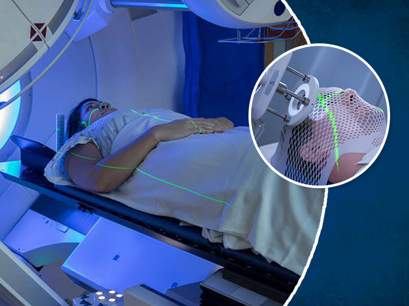 What Are The Side Effects Of Radiation Therapy? Know From An Expert