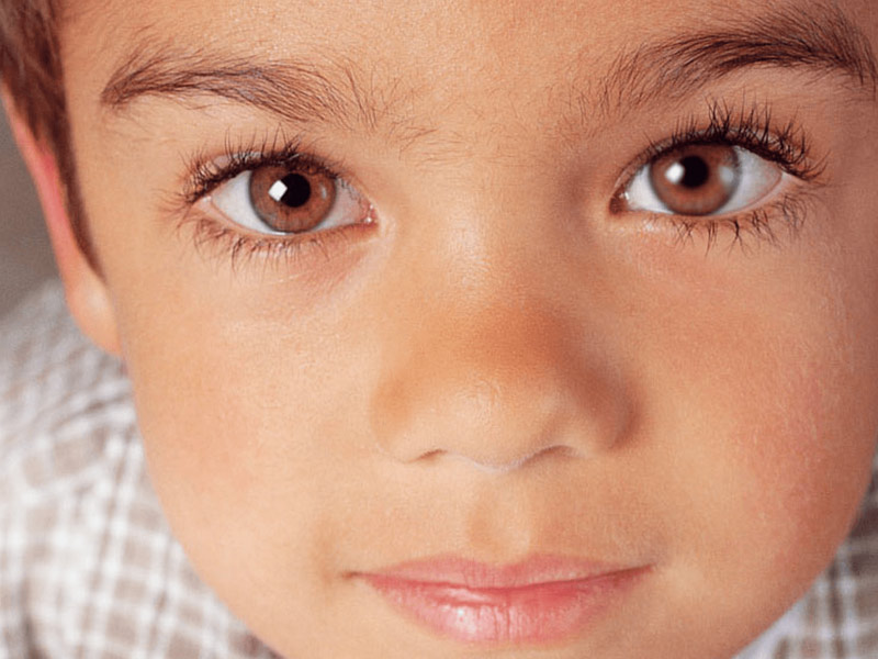 Lazy Eye In Children: Know Signs And Symptoms Of Lazy Eye, Tips To Manage The Condition In Kids