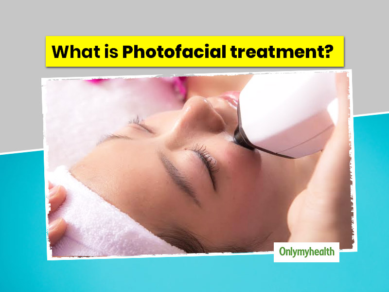 What Is Photofacial Skin Treatment? Know The Types, Benefits And Side Effects