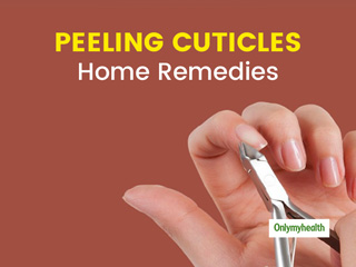 Peeling Cuticles? Here Are Some Natural Ways To Cure Them
