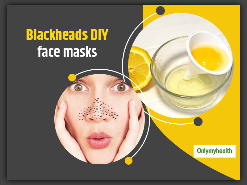 Want To Get Rid Of Blackheads? Try These 6 Amazing DIY Face Masks To Remove Those Skin Pores