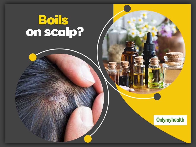 Boils On Scalp? Here Are 5 Useful Home Remedies To Get Rid Of Them